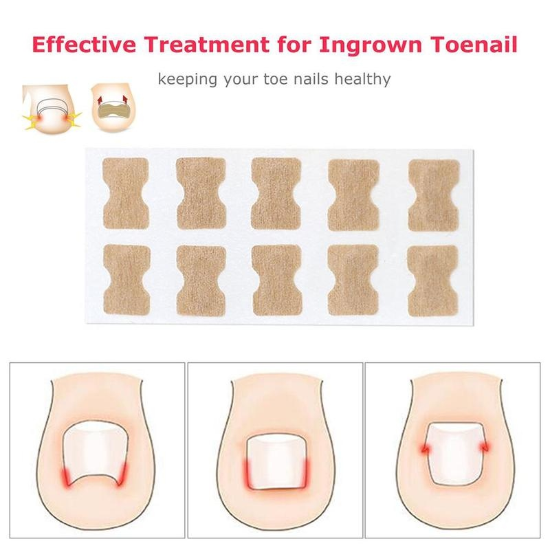 10pcs Glue-Free Inlay Nail Correction Patch Ingrown Toenail Correction Pedicure Tool