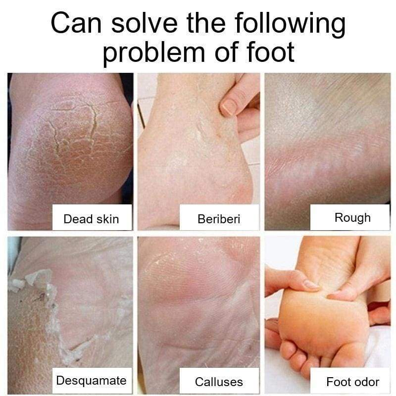 Newest Skin Repairing Moisturizer Horse Oil Foot Cream Anti-Chapping for Rough Dry and Cracked Chapped Feet Heel Give You A Pair of White and Smooth Feet(10g/30g)