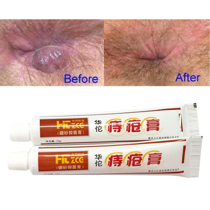 100% Natural Herbal Hemorrhoid Cream【BUY 3 FREE SHIPPING】