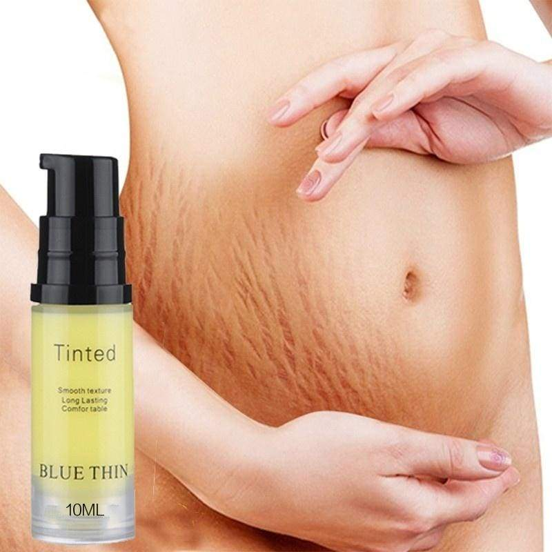 I think you'll like- Scar Stretch Marks Cream Repair cream Removal Acne Scar Stretch , What Are You Waiting For? Come On! For Your Health And Charm