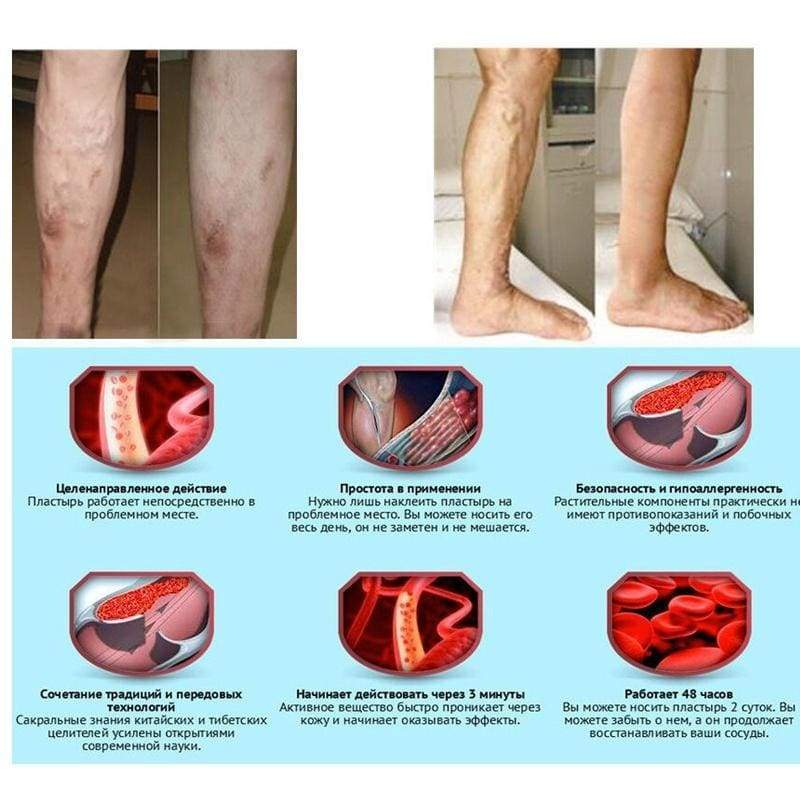 1PC 20g Leg Acid Bilges Itching Lumps Vasculitis Natural Herbaceous Cream Medical Varicose Veins Treatment