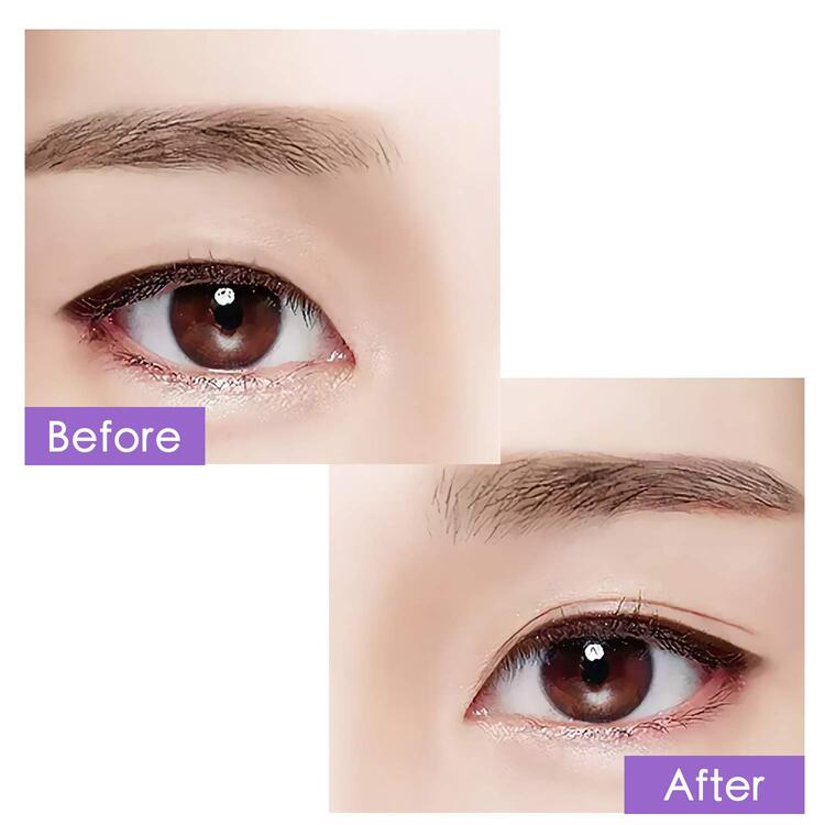 ✨2020 Mom's Day Promotions💕- New 2020  Instant Eye Lift